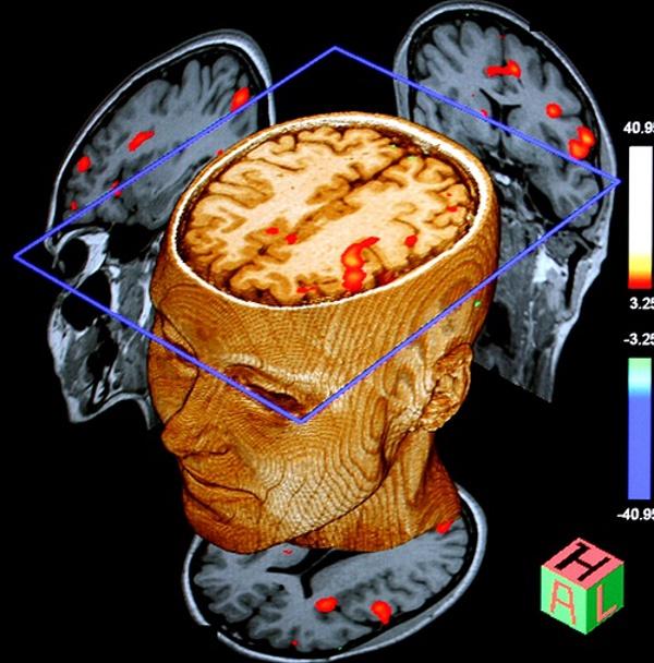 мозъчна активност