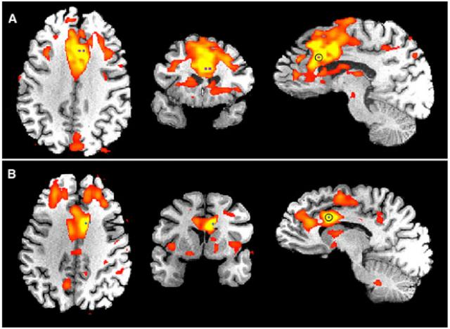 © Parvizi et al. Neuron 2013