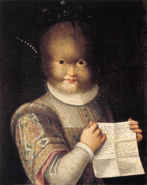 """Лавиния Фонтана. """"Портрет на Антониета Гонзалес"""" (ок. 1595 г.). Типичен случай на хипертрихоза – рядко генетично отклонение."""