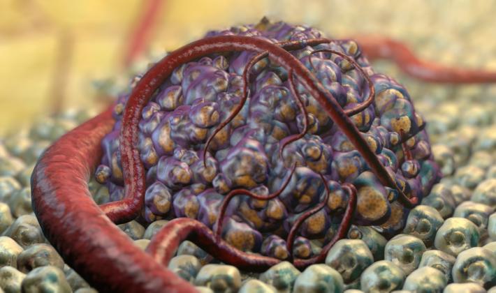 На тази картинка е изобразен формиран млад злокачествен тумор. Процесът ангиогенеза (нарастване на кръвоносните съдове, които го подхранват), вече е приключил и се вижда как кръвоносните съдове обгръщат раковите клетки.