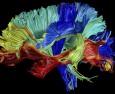 Размерът на мозъка се променя цял живот