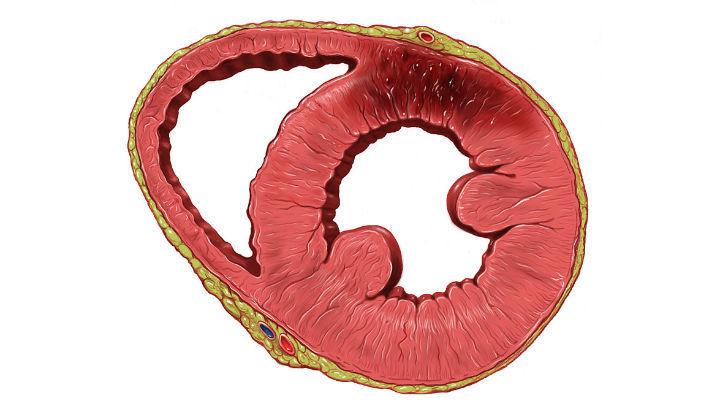 На рисунката е показано сърце в разрез с увреждания след инфаркт на миокарда (тъмното петно).© Patrick J. Lynch/Wikipedia