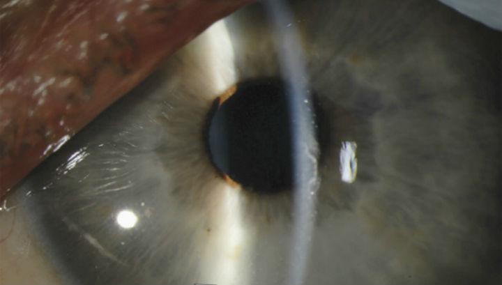 Лявото око на д-р Крозие 14 дни след началото на хеморагичната треска ебола.© NEJM