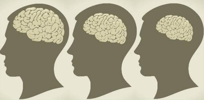 Мозъкът се свива с 0,4% всяка година. © Vladgrin/iStock; edited by Epoch Times