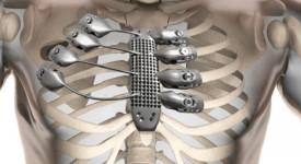 титанова протеза на гръден кош