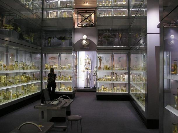 Скелетът на Чарлз Бирн. StoneColdCrazy / CC BY SA