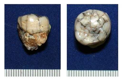 Зъб на гигантопитек. Senckenberg Research Institute