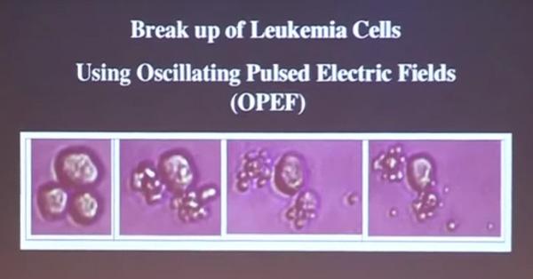 Разрушаване на ракови клетки (от левкемия) чрез осцилиращи пулсирани електрически полета.