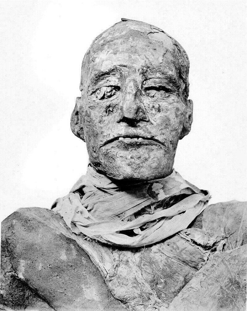 Мумията на Рамзес III= © BMJ