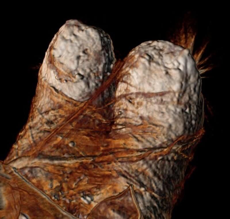 Триизмерно сканиране на пръстиите на Рамзес III показва дебели ленени бинтове.  © Sahar Saleem and Zahi Hawass