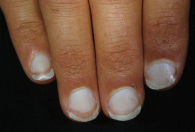 бели нокти