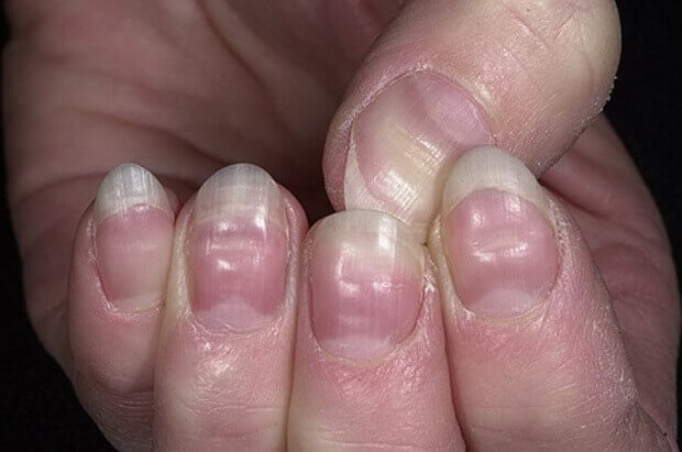 бразди по ноктите