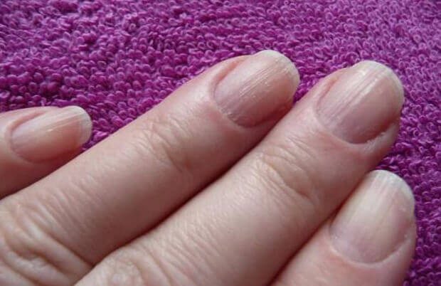 линии по ноктите