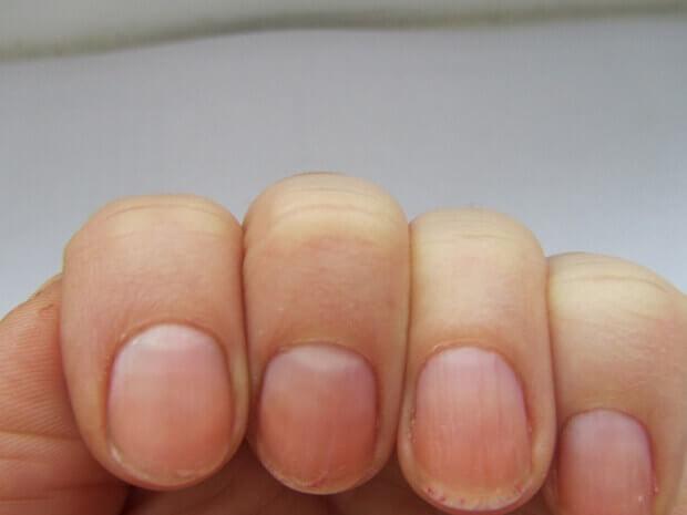 чупливи разслоени нокти