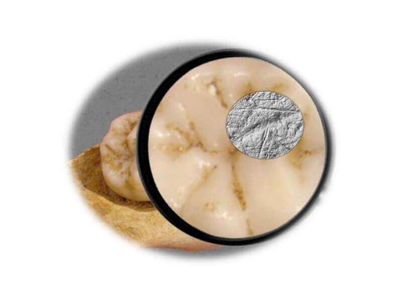 Зъб на кроманьонец и драскотини по неговия емайл. © Sireen El Zaatari et al. / PLOS ONE 2016