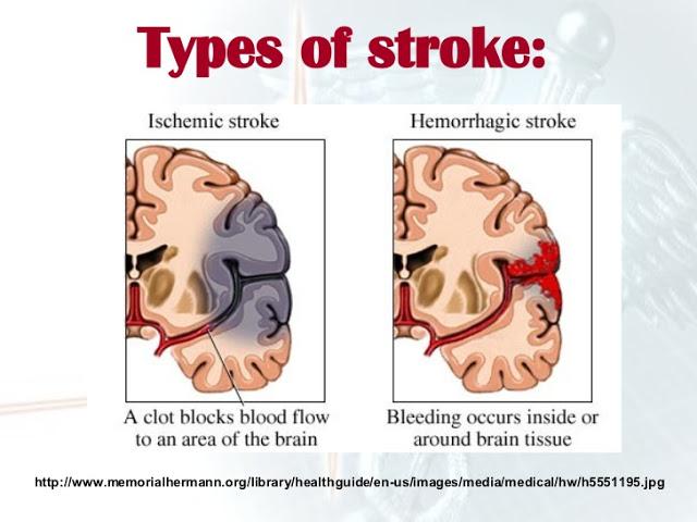 stroke-presentation-ms-6-728