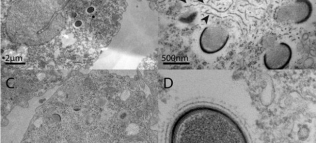 Ancient_giant_viruses_are_being-d95ce54b4d914f5b793814ead05de755