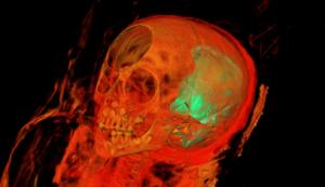 Учените не са сигурни за какво се използва предметът в черепа.
