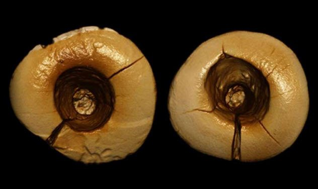 8-prehistoric-dentistry